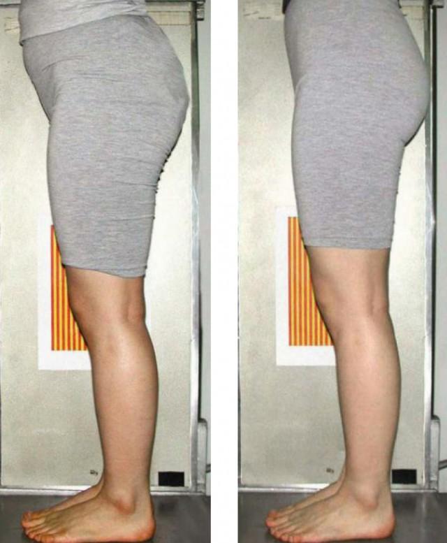 O脚の27歳女性 1か月使用時点2