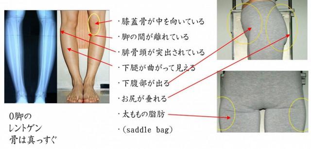 O脚の主な特徴